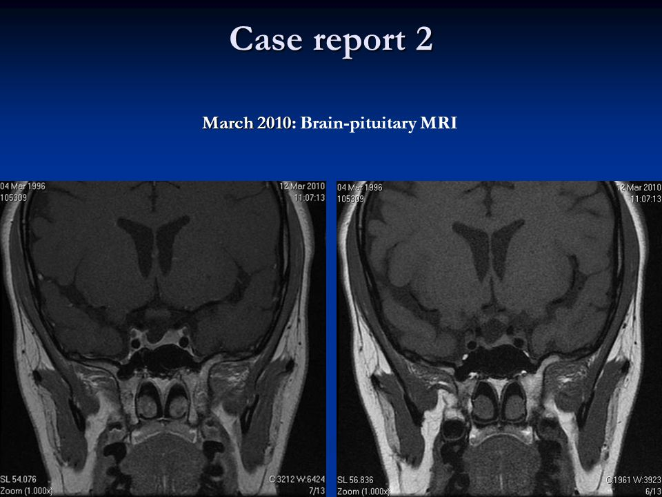 Case report 2 March 2010: Brain-pituitary MRI