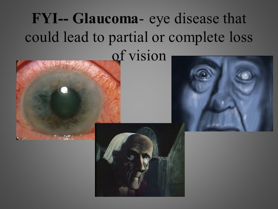 FYI-- Glaucoma- eye disease that could lead to partial or complete loss of vision