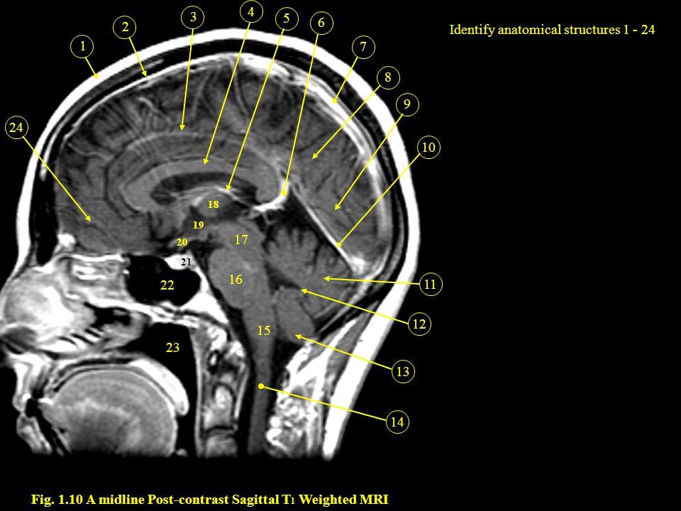 Normal mri brain anatomy