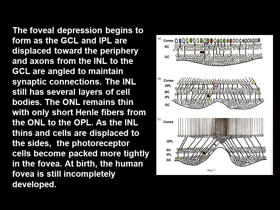 The foveal depression begins to form as the GCL and IPL are displaced toward the periphery and axons from the INL to the GCL are angled to maintain synaptic connections.