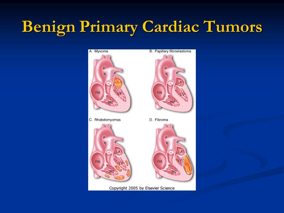 Benign Primary Cardiac Tumors