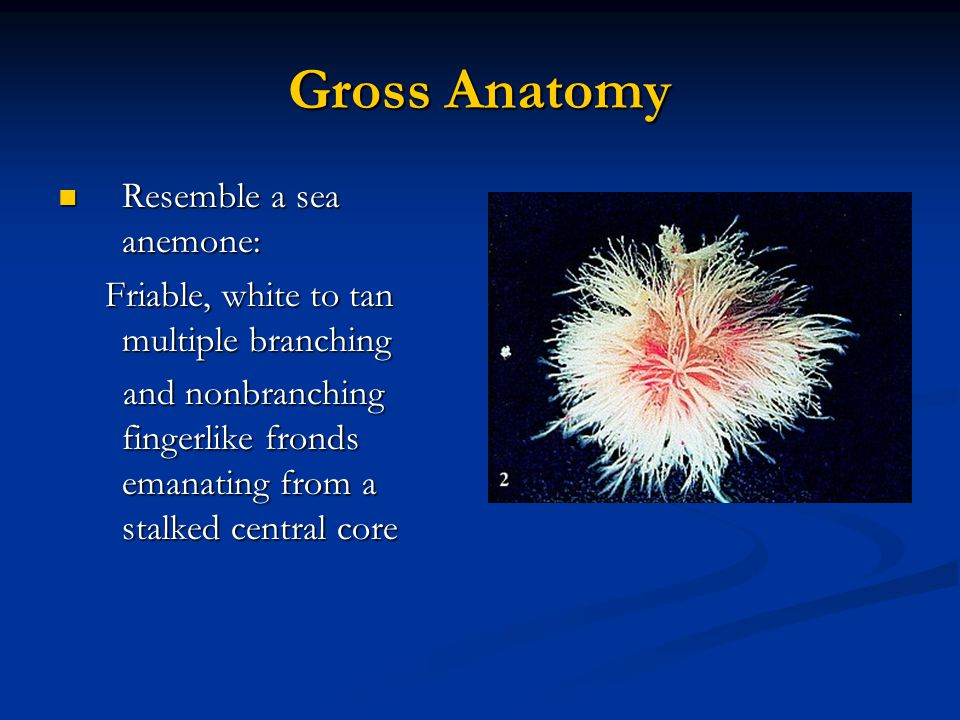 Gross Anatomy Resemble a sea anemone: