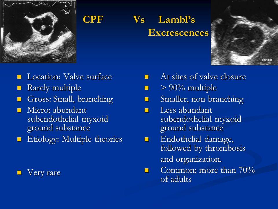CPF Vs Lambl's Excrescences