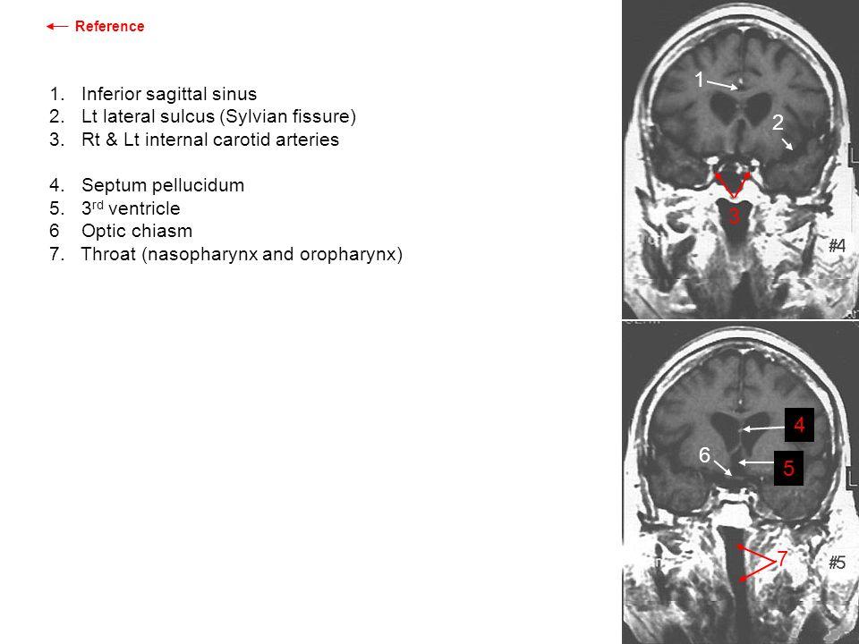 1 2 3 4 6 5 7 1. Inferior sagittal sinus
