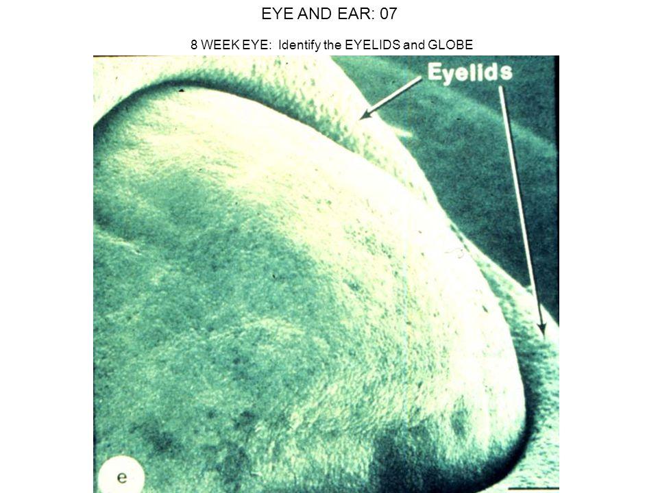 8 WEEK EYE: Identify the EYELIDS and GLOBE