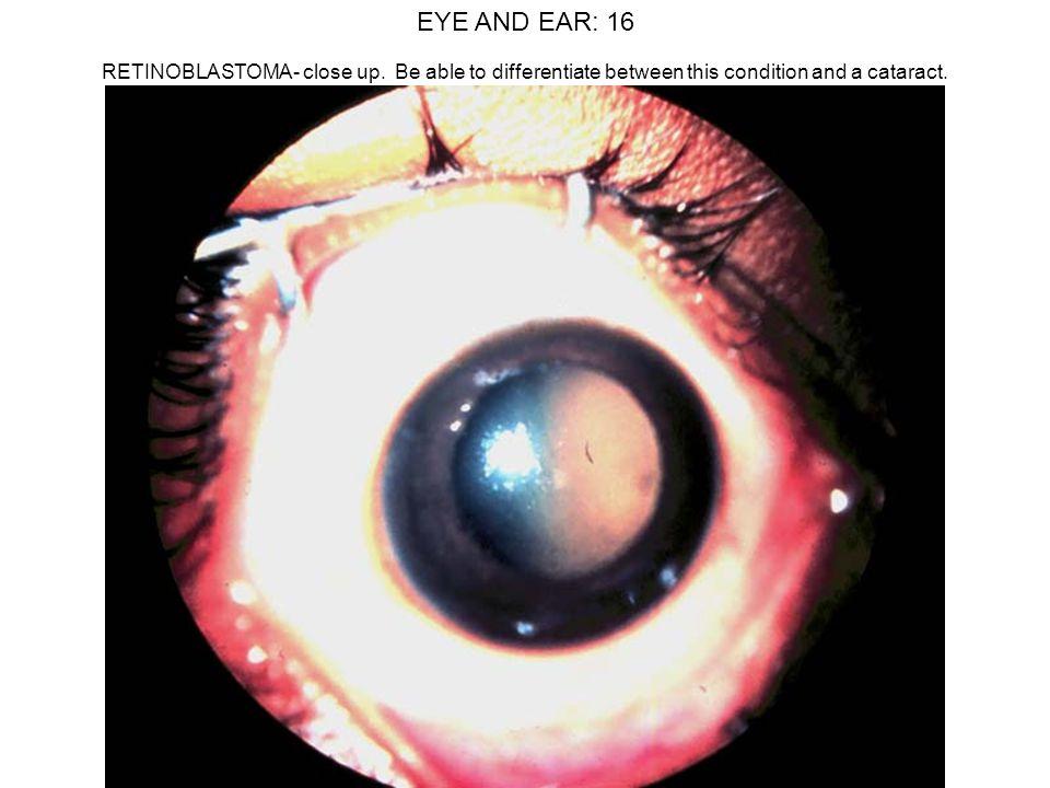 EYE AND EAR: 16 RETINOBLASTOMA- close up.