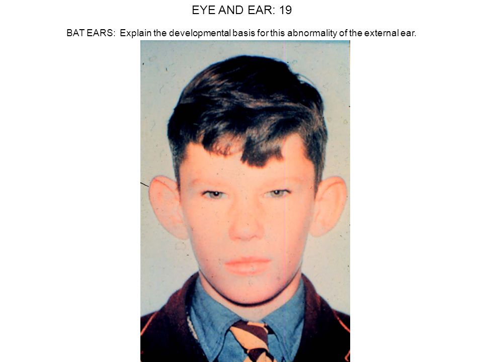 EYE AND EAR: 19 BAT EARS: Explain the developmental basis for this abnormality of the external ear.