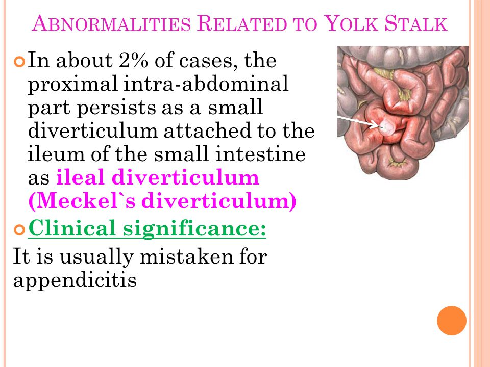 Abnormalities Related to Yolk Stalk