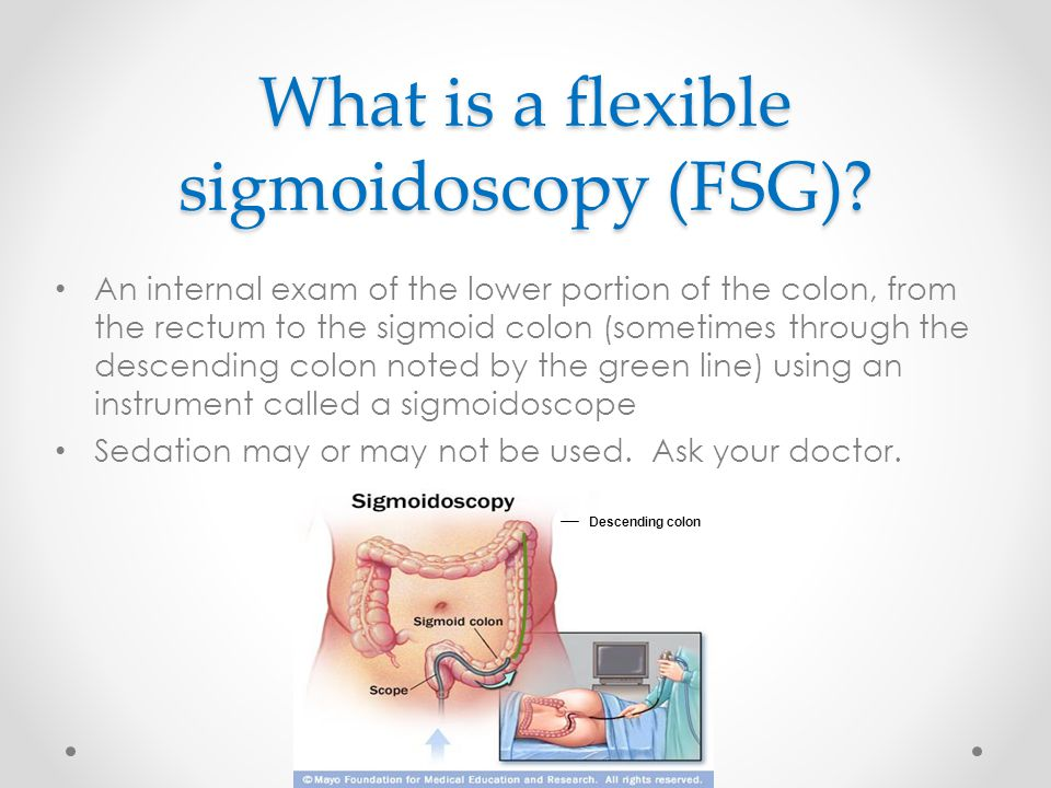 What is a flexible sigmoidoscopy (FSG)