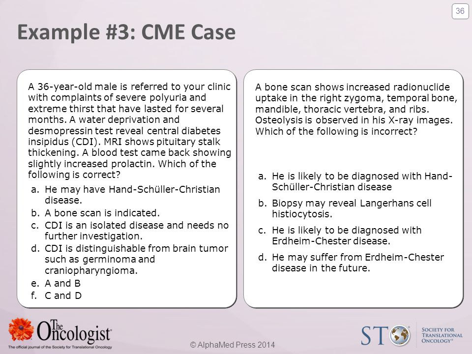 Example #3: CME Case