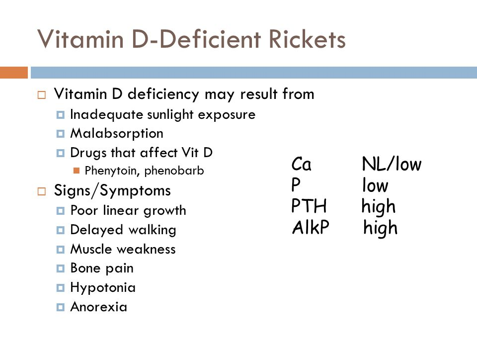 Vitamin D-Deficient Rickets