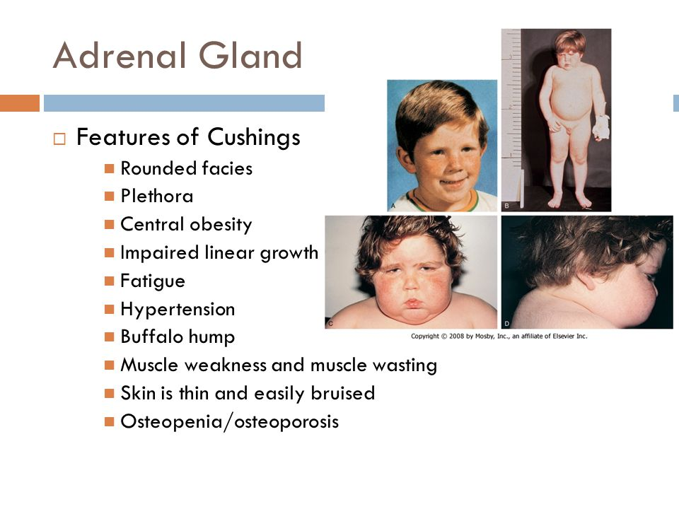 Adrenal Gland Features of Cushings Rounded facies Plethora