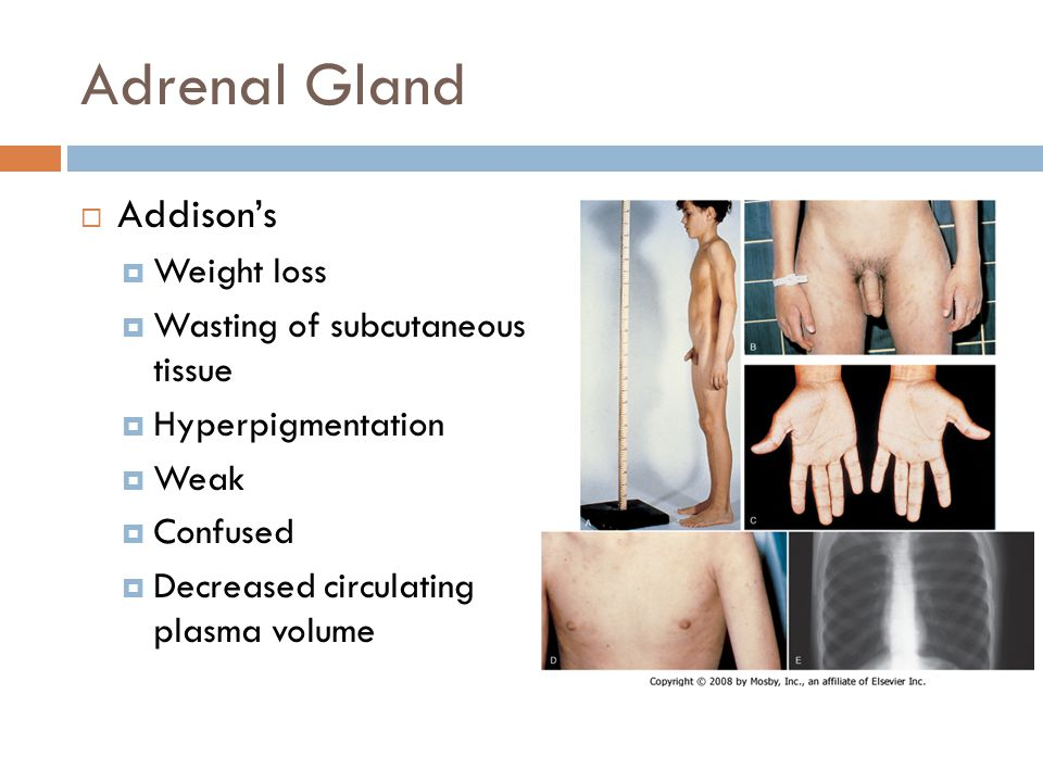 Adrenal Gland Addison's Weight loss Wasting of subcutaneous tissue