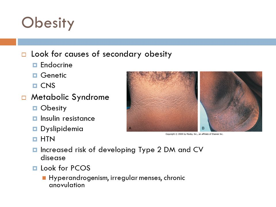 Obesity Look for causes of secondary obesity Metabolic Syndrome