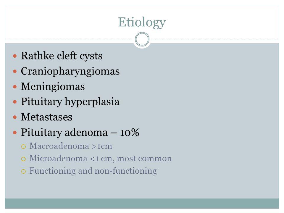 Etiology Rathke cleft cysts Craniopharyngiomas Meningiomas
