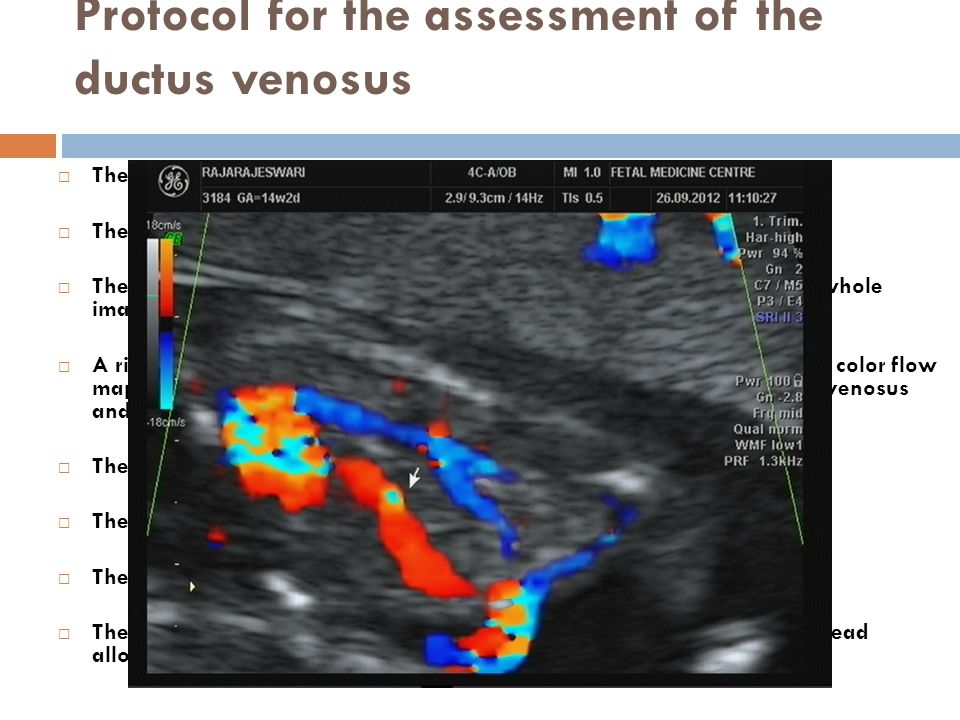 Protocol for the assessment of the ductus venosus