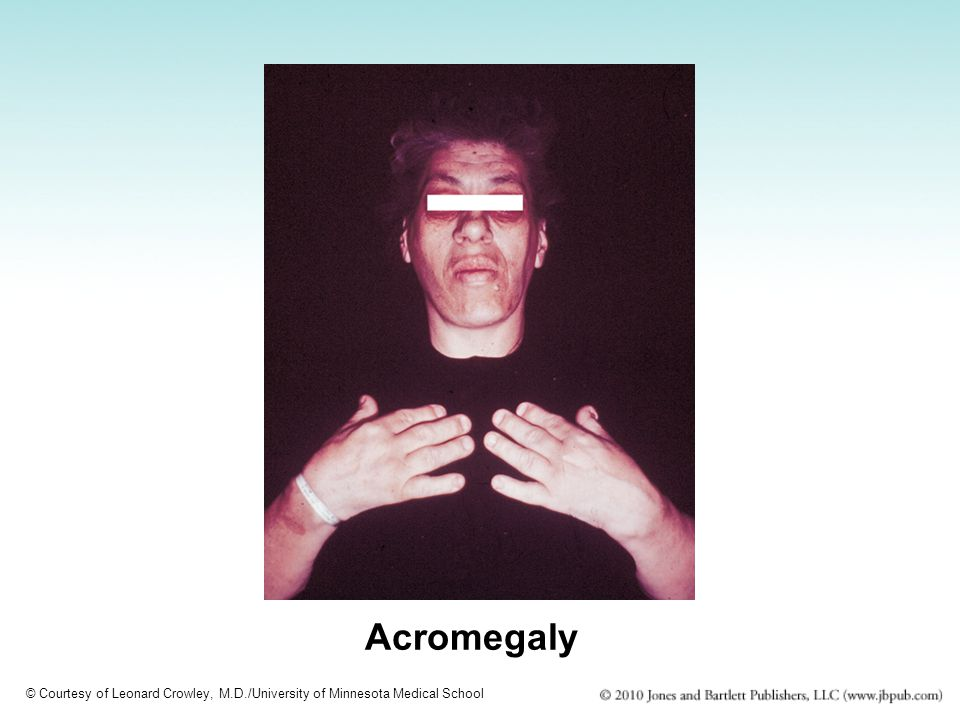 Acromegaly © Courtesy of Leonard Crowley, M.D./University of Minnesota Medical School