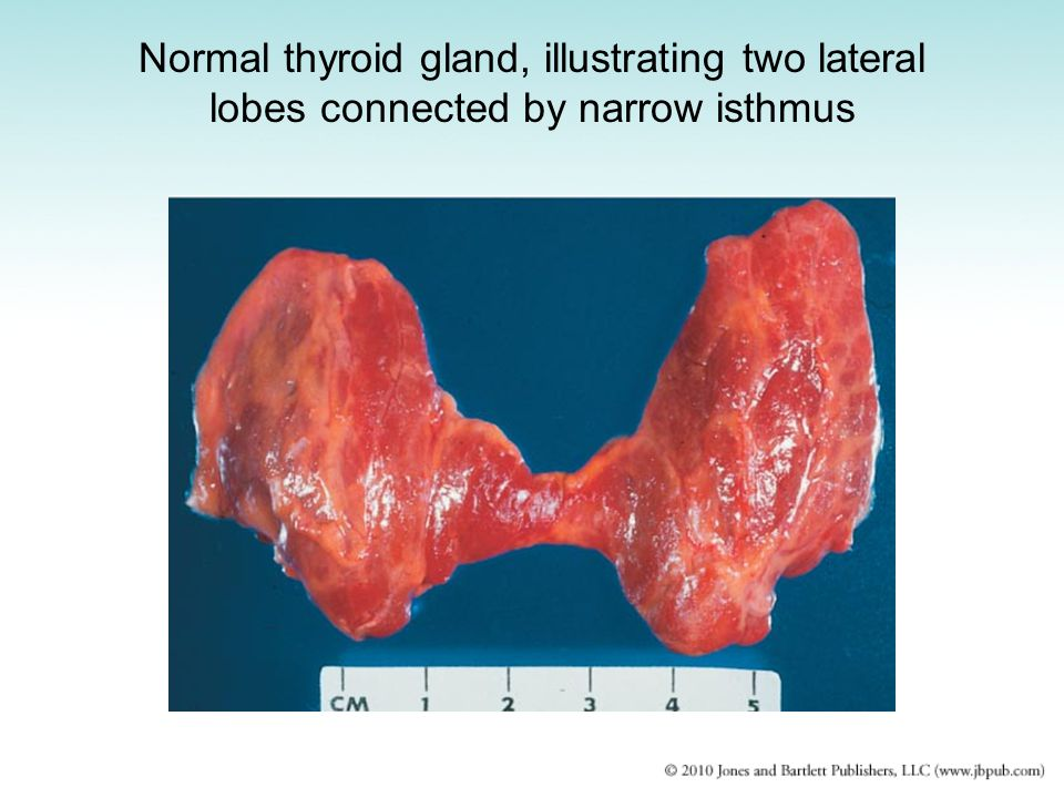 Normal thyroid gland, illustrating two lateral lobes connected by narrow isthmus