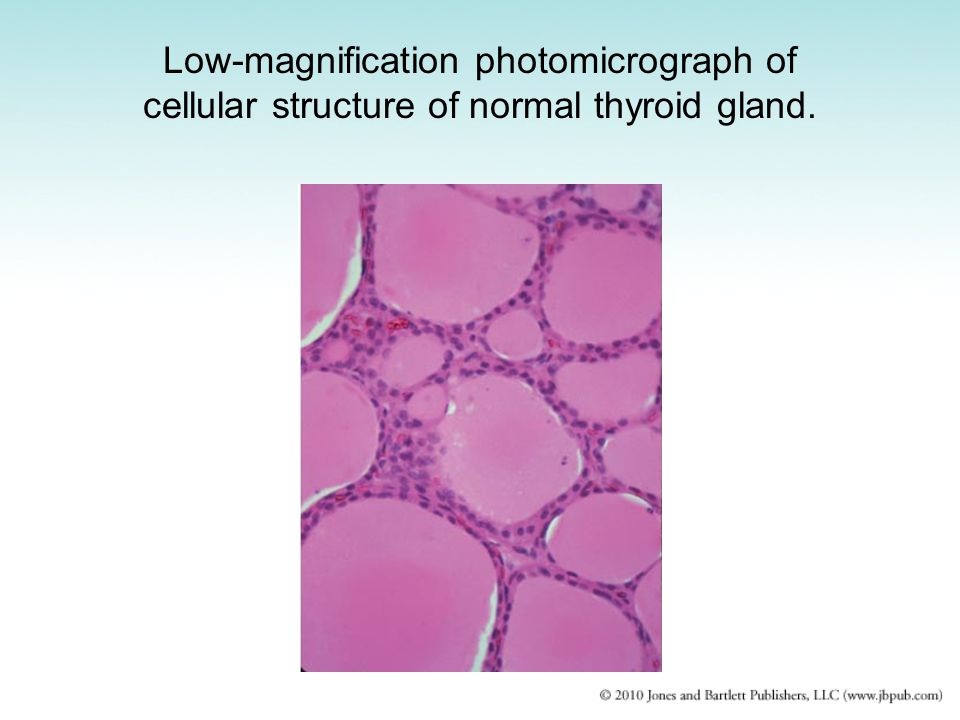 Low-magnification photomicrograph of cellular structure of normal thyroid gland.