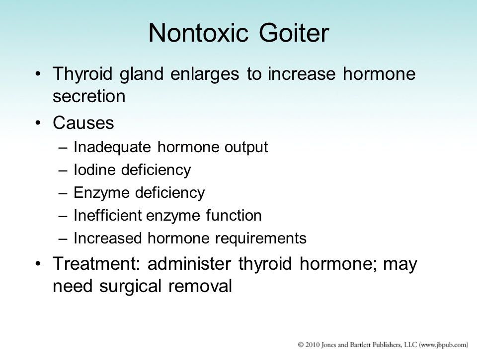 Nontoxic Goiter Thyroid gland enlarges to increase hormone secretion