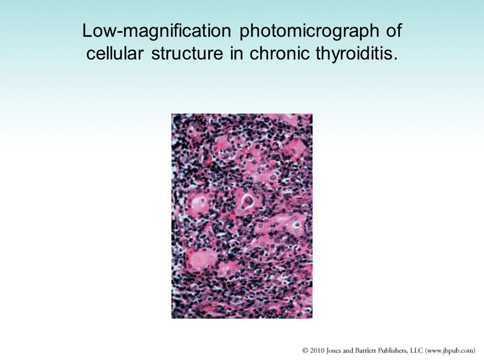 Low-magnification photomicrograph of cellular structure in chronic thyroiditis.
