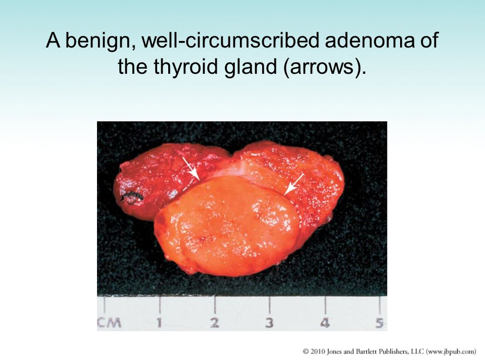 A benign, well-circumscribed adenoma of the thyroid gland (arrows).