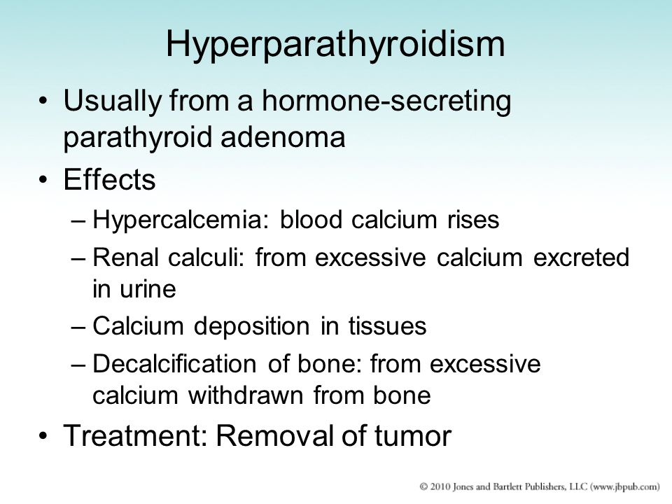 Hyperparathyroidism Usually from a hormone-secreting parathyroid adenoma. Effects. Hypercalcemia: blood calcium rises.