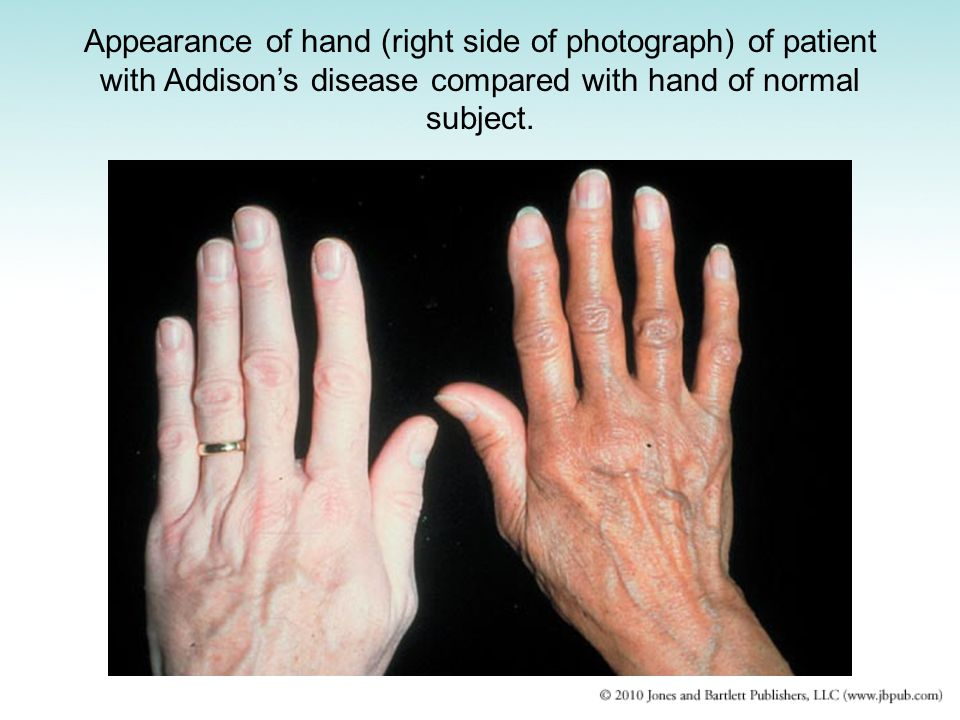 Appearance of hand (right side of photograph) of patient with Addison's disease compared with hand of normal subject.