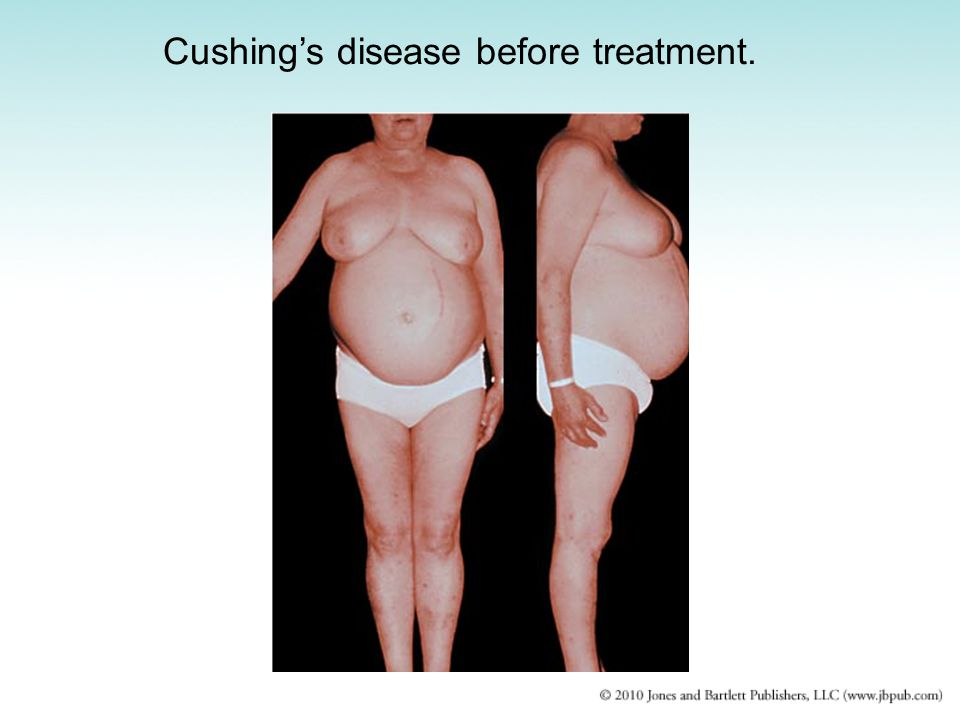Cushing's disease before treatment.