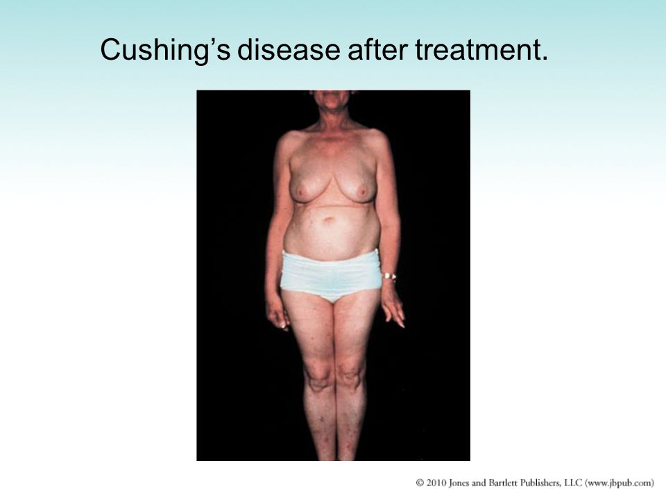 Cushing's disease after treatment.