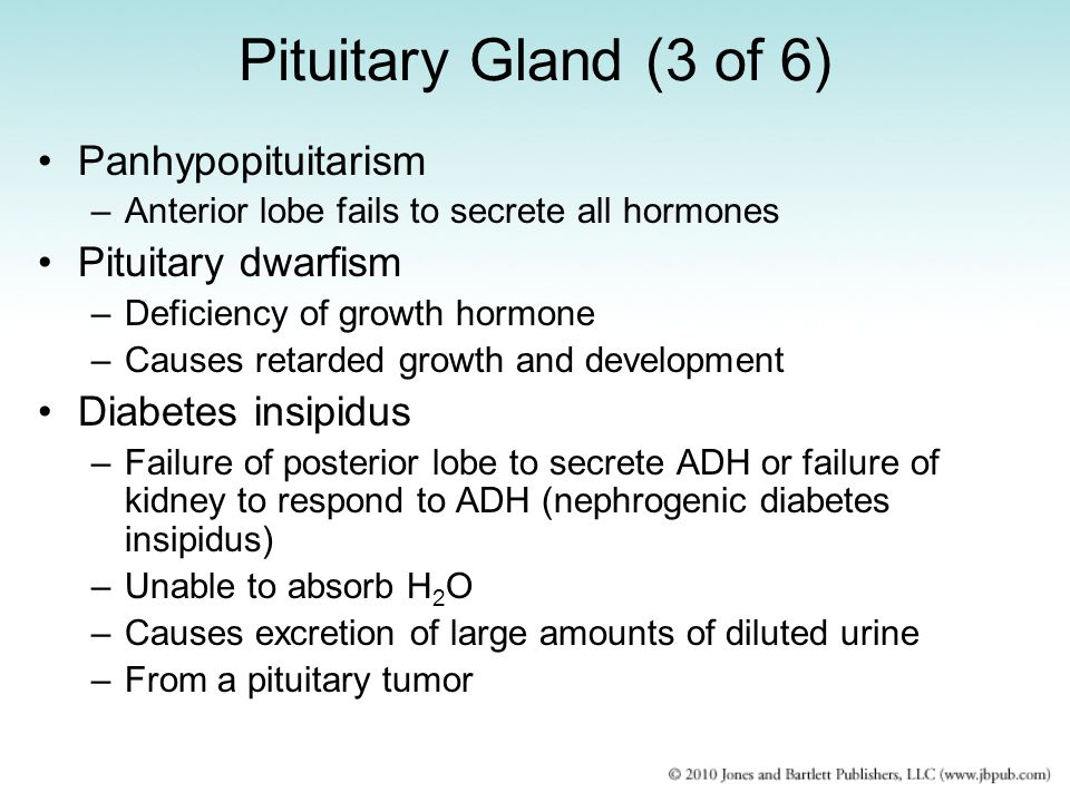 Pituitary Gland (3 of 6) Panhypopituitarism Pituitary dwarfism