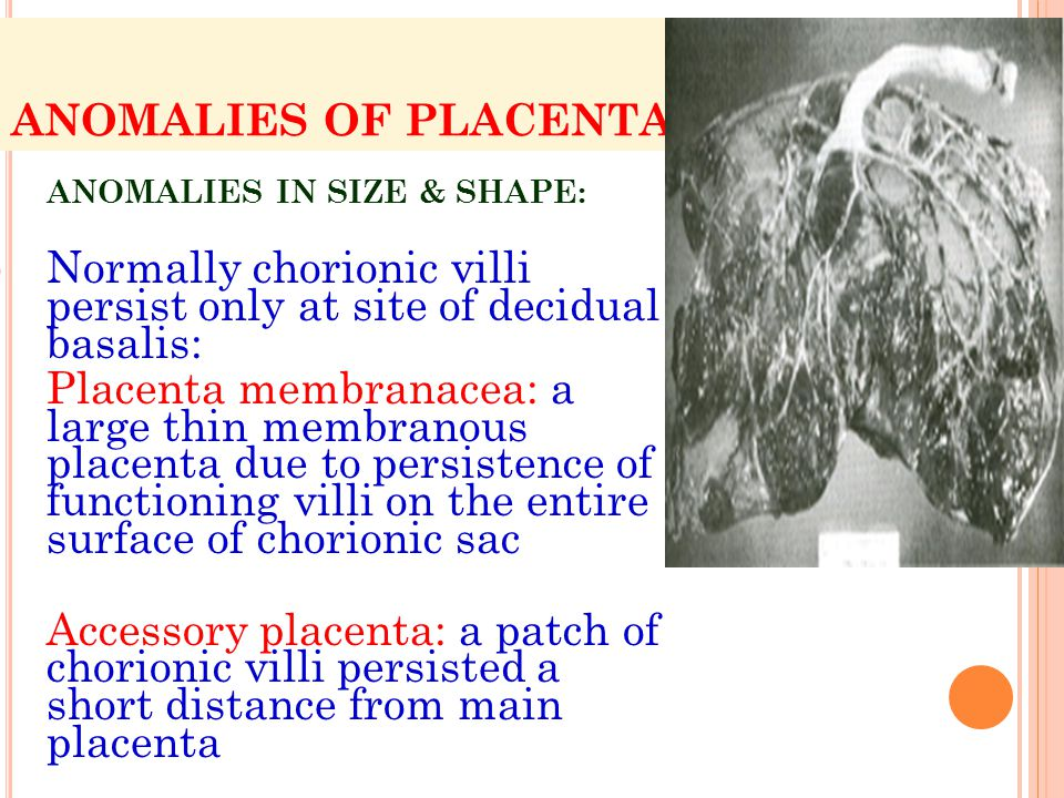 Normally chorionic villi persist only at site of decidual basalis: