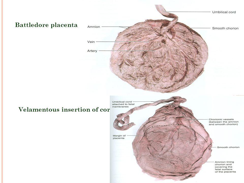 Velamentous insertion of cord