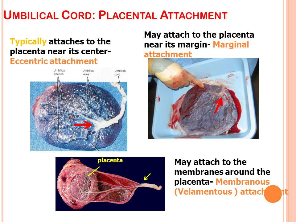Umbilical Cord: Placental Attachment