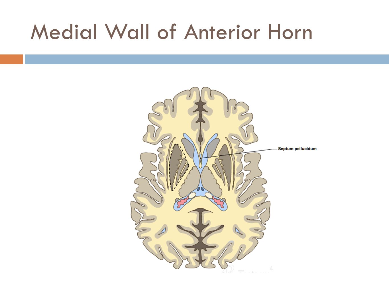 Medial Wall of Anterior Horn