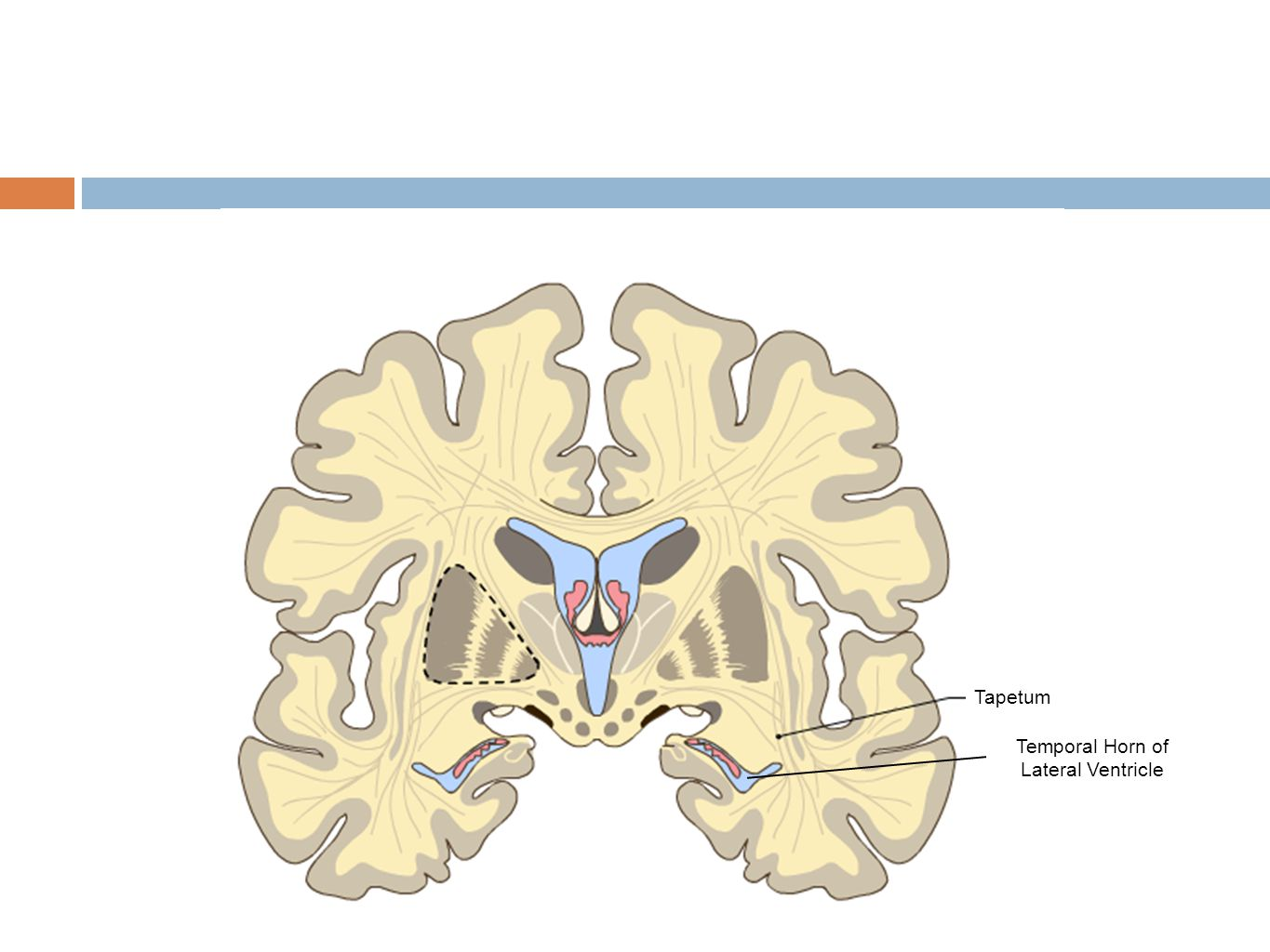 Temporal Horn of Lateral Ventricle