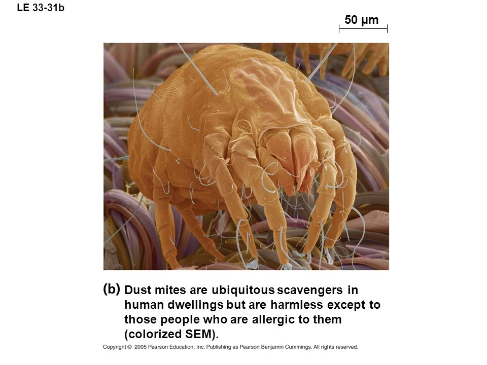 LE 33-31b 50 µm.