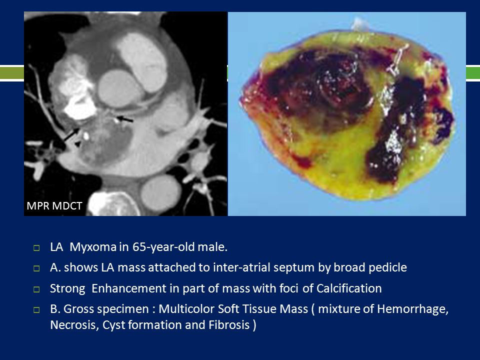 LA Myxoma in 65-year-old male.