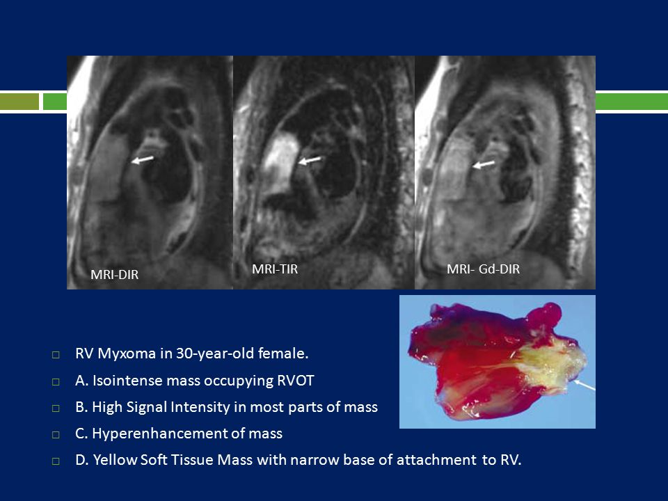 RV Myxoma in 30-year-old female. A. Isointense mass occupying RVOT