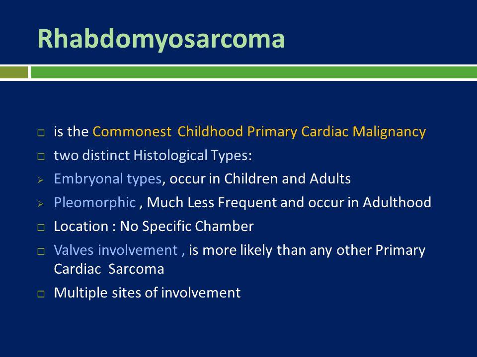 Rhabdomyosarcoma is the Commonest Childhood Primary Cardiac Malignancy