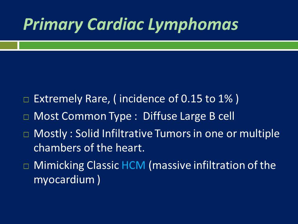 Primary Cardiac Lymphomas