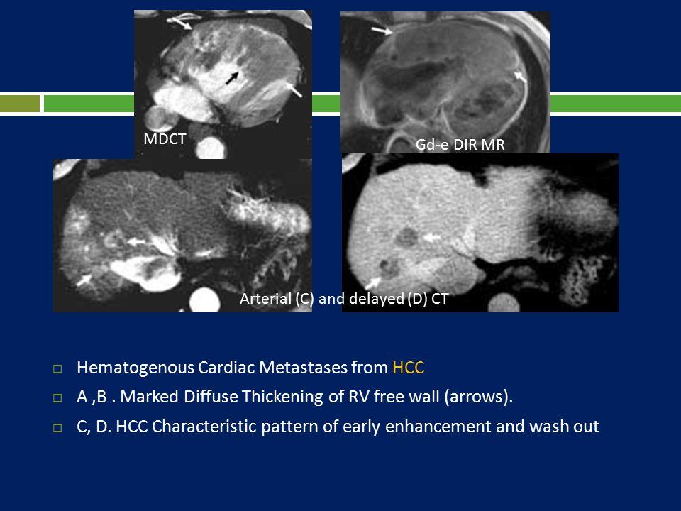 Hematogenous Cardiac Metastases from HCC