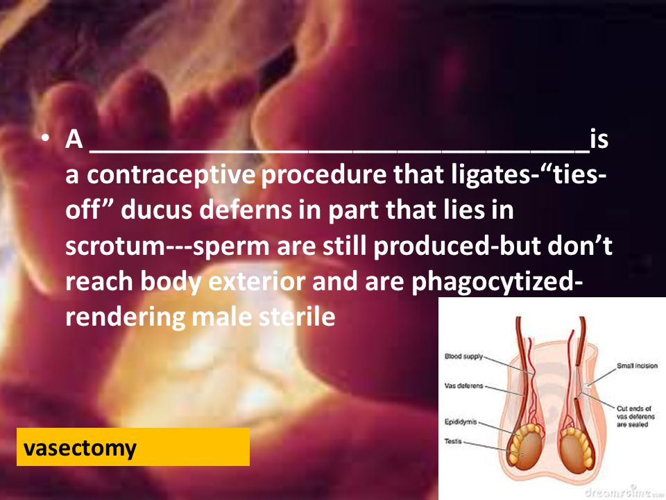 A __________________________________is a contraceptive procedure that ligates- ties-off ducus deferns in part that lies in scrotum---sperm are still produced-but don't reach body exterior and are phagocytized-rendering male sterile