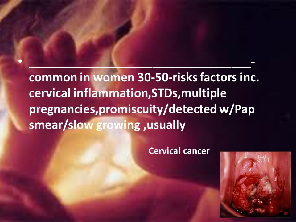 __________________________________-common in women 30-50-risks factors inc. cervical inflammation,STDs,multiple pregnancies,promiscuity/detected w/Pap smear/slow growing ,usually