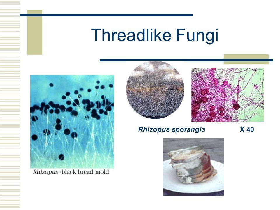 Threadlike Fungi Rhizopus sporangia X 40