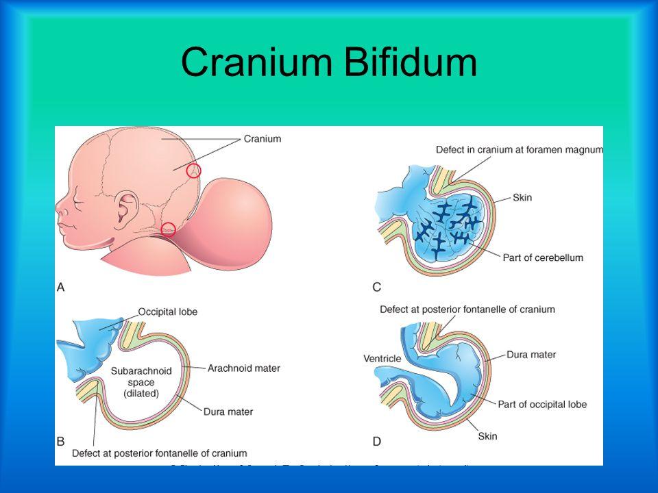 Cranium Bifidum