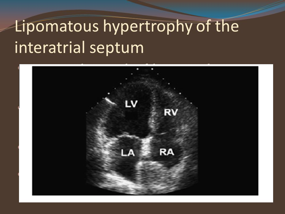 Lipomatous hypertrophy of the interatrial septum