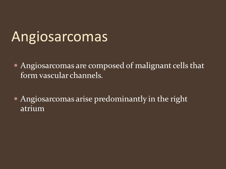 Angiosarcomas Angiosarcomas are composed of malignant cells that form vascular channels.