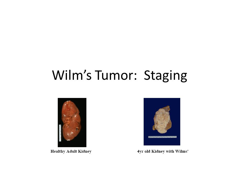 Wilm's Tumor: Staging