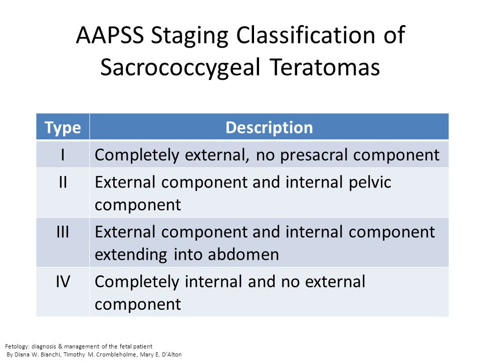 AAPSS Staging Classification of Sacrococcygeal Teratomas